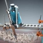 Medtronic puts another $40m into Mazor Robotics